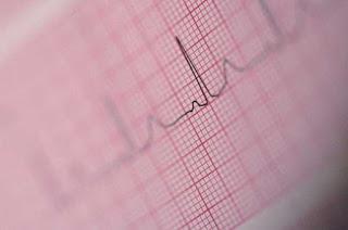 Diabetes Medication Liraglutide Saves Lives