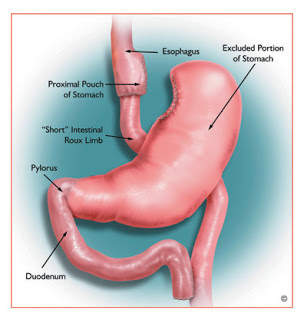 How Successful is Gastric Bypass Surgery 12 Years Later?