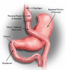 Genetics Influence Response of Body Weight to Gastric Bypass Surgery