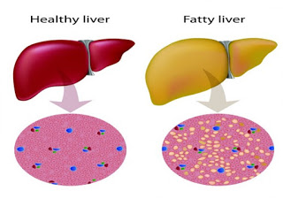 Fatty Liver – A Dangerous Complication of Obesity