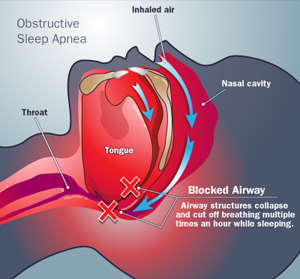 Why Is Obstructive Sleep Apnea Dangerous?