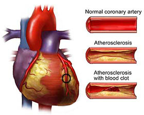 New Class of Cholesterol Medication Prevents Heart Attacks